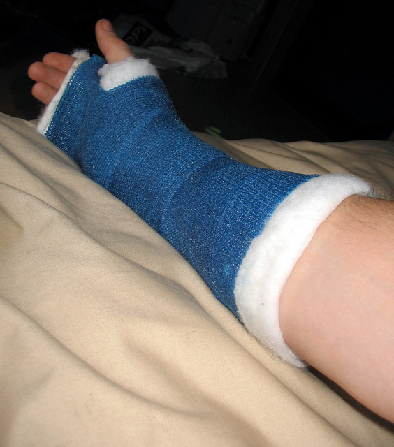 Fractured Wrist Child a Fracture of The Wrist