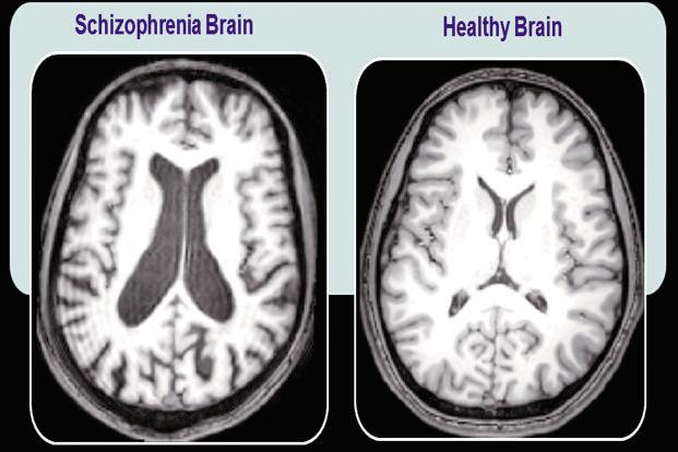 a report on the similarities between the schizophrenic and the normal individual Schizophrenia is a serious disorder which affects how a person thinks, feels and acts someone with schizophrenia may have difficulty distinguishing between what is real and what is.